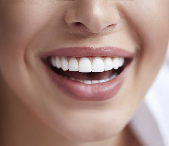 Flawless smile after metal free dental restoration