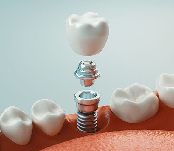 Animated dental implant placement