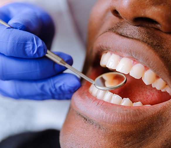 Dentist checking tooth colored filling during a restorative dentistry visit
