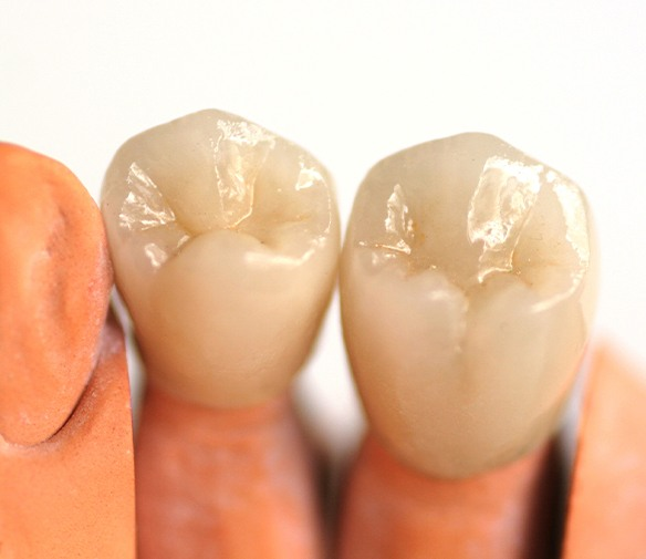 Model smile with dental crown restoration